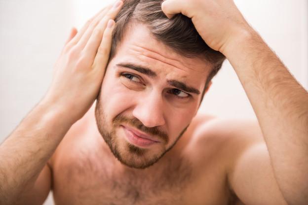 Tipps gegen schuppige Haare